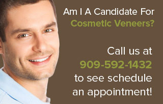 Am I A Candidate For Cosmetic Veneers?